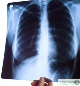 استخراج نقره از عکس رادیولوژی